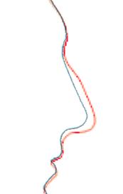 profilirinoplastica