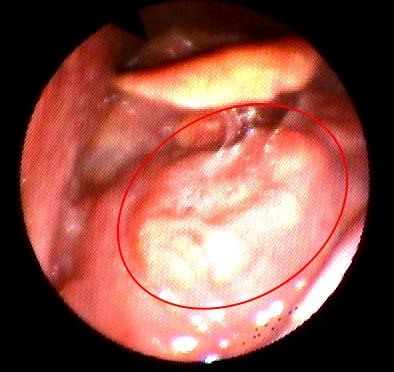 Carcinoma squamocellulare dell'orofaringe (emibaselingua destra)