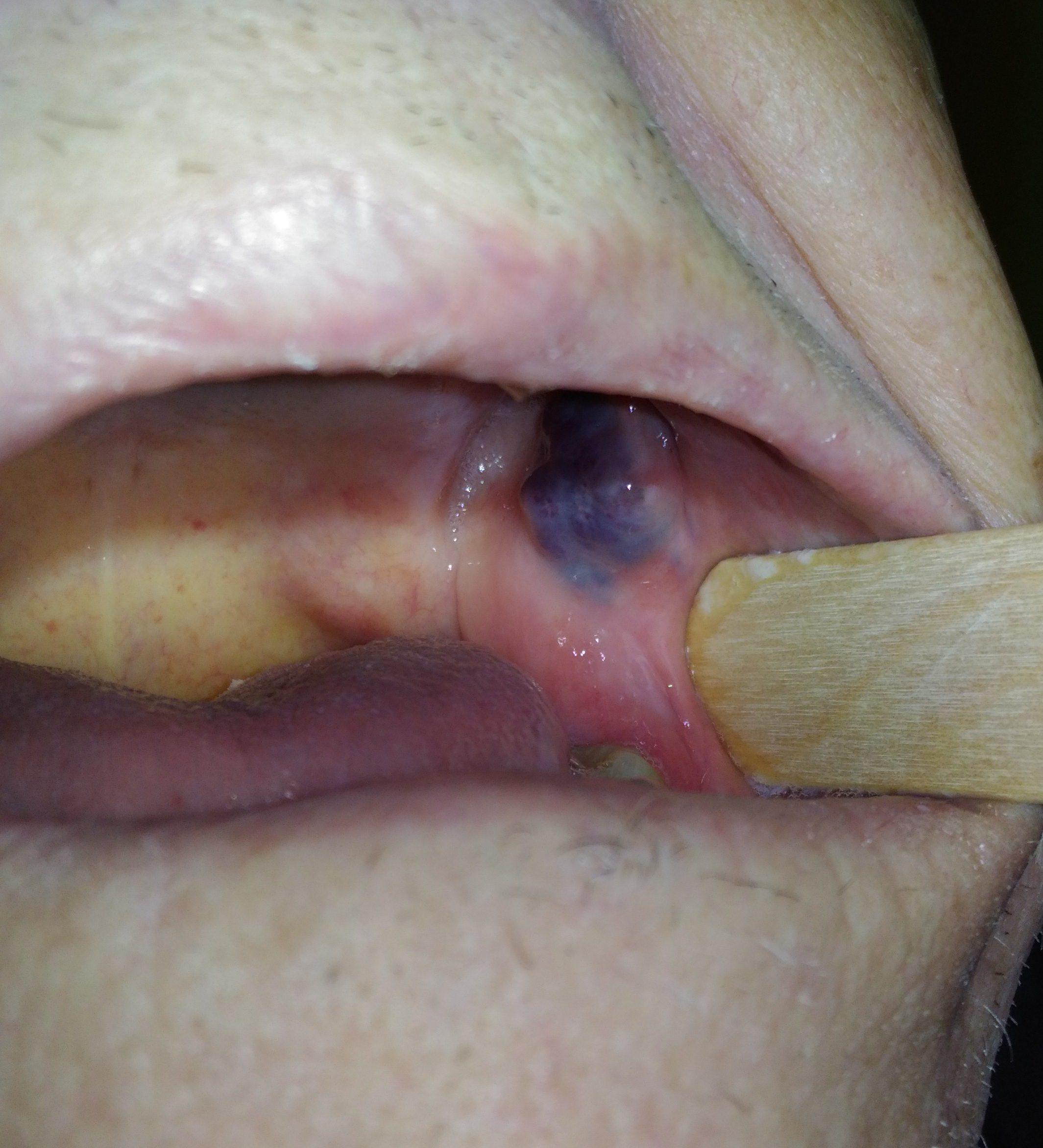 left cheek mucous Angioma