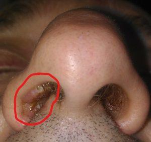 Papilloma virus nasale - Virus papiloma garganta sintomas